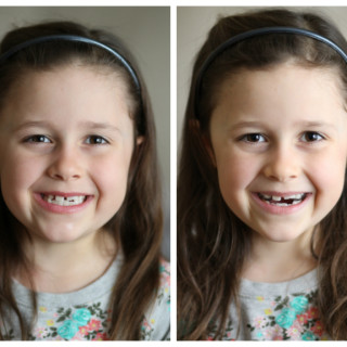 Orthodontics – Helping our Kids get Healthy Smiles