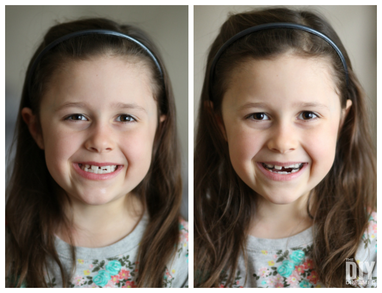 Helping our Kids get Healthy Smiles - Orthodontics